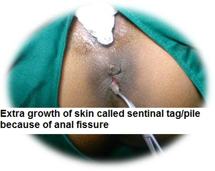 Anal fissure surgery cost